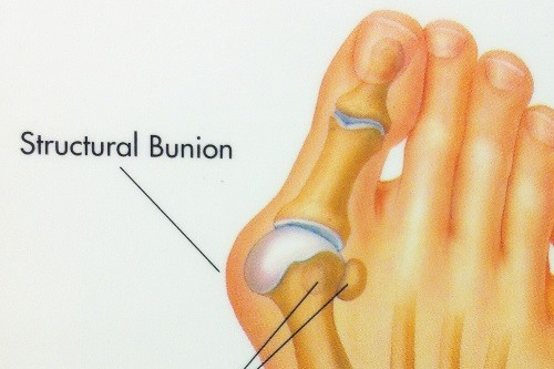 Bunion Description Close up