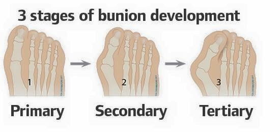 Bunion Progression on foot