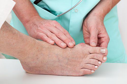 Bunion in a Hospital Doctor examines it
