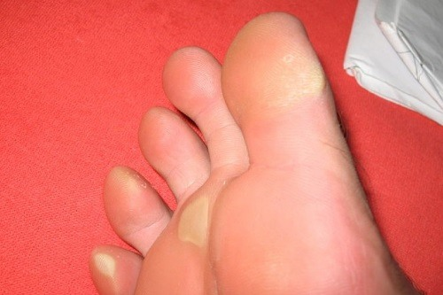 Calluses on a Foot