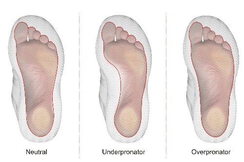 Foot Pronator Bunion Causes