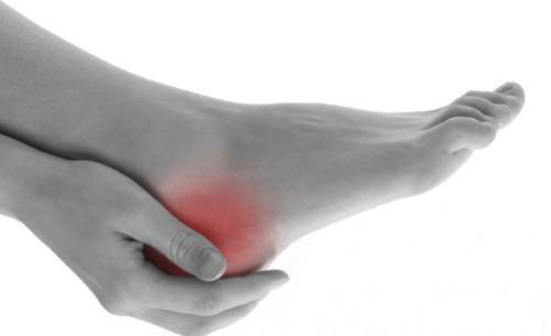 Foot Pain in the Heel