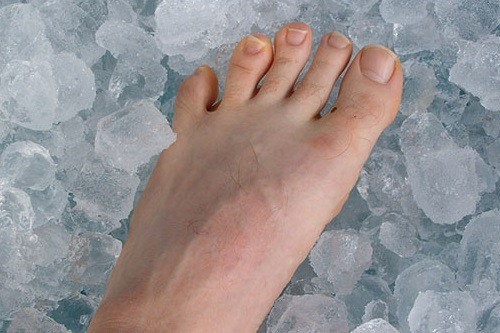 Place your feet into ice