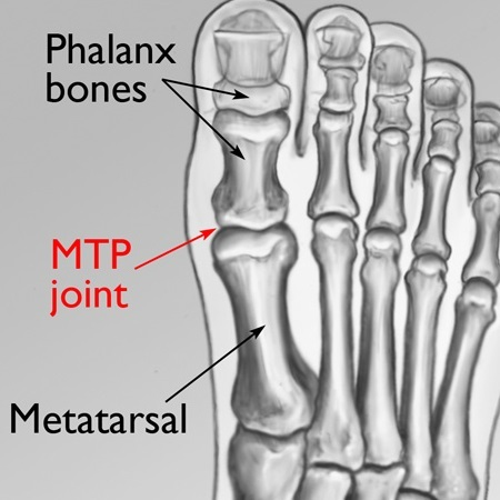 MTP Joint Inflamation