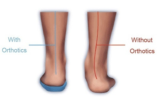 Using Orthotics for Over Pronation