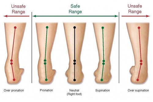 Overpronation-Range Illustration