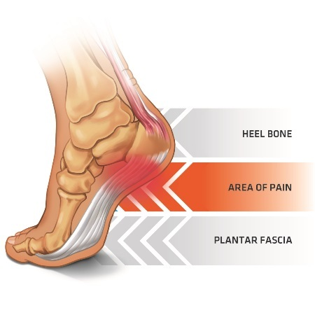Plantar Fasciitis Area of Pain On The Foot