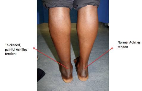 achilles-tendinopathy shown