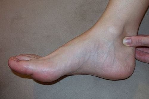 achilles tendon avoid presure